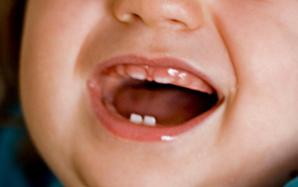4 Dentes